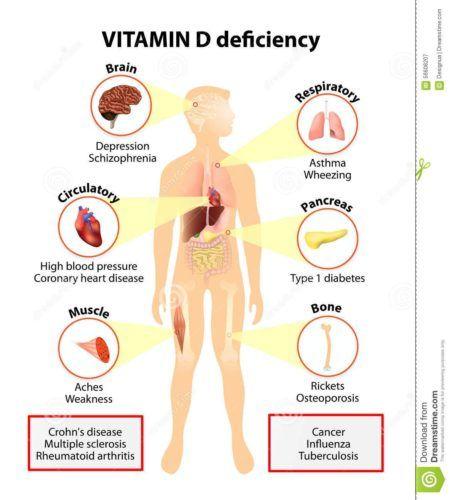 deficiência de vitamina D como é causada