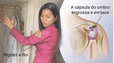 Capsulite Adesiva no Ombro ( Ombro congelado, Tratamento )