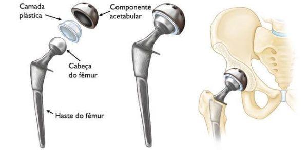 Cirurgia para Prótese de Quadril solução para dores