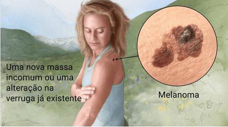 Como Identificar Melanoma na Pele, e o seu Tratamento
