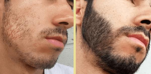Remédio para crescer barba e cabelo, Nomes Como usar