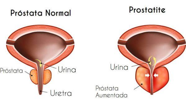 Remédio Antibiótico para Prostatite (Medicação Correta)